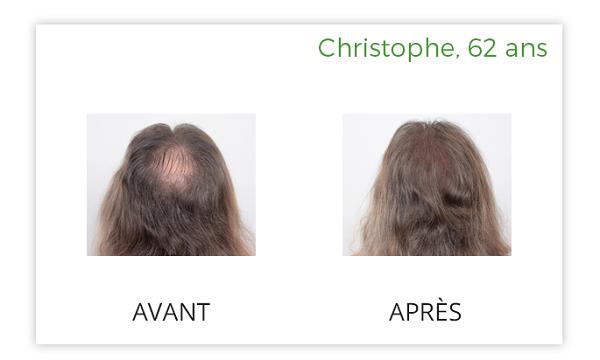 luxeol cheveux avant après