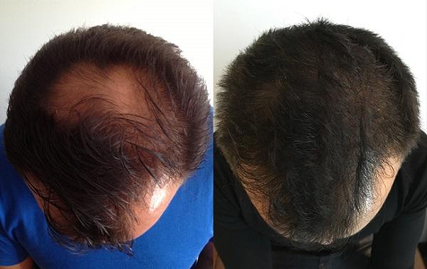 avis sur luxeol cheveux