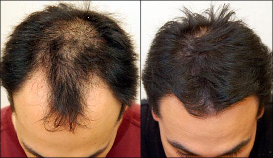 biotine cheveux avant après homme